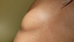 Lipoma at the  upper back. Benign subcutaneous swelling containing fat tissue.