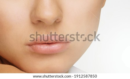 Lips. Problem with mouth disease before and after treatment. Healthy woman lips, Сток-фото ©