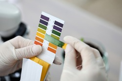 Litmus paper shows acidity, chemical analysis. Indicator for determining reaction medium. Strips and scraps filter paper tape. Most accurate measurement results. Use litmus paper in various fields