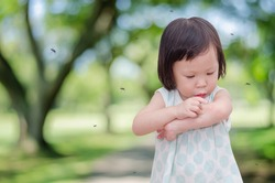 Little Asian girl has allergies with mosquitoes bite,girl scratching her arm with red spot   and many mosquitoes flying around her in park.