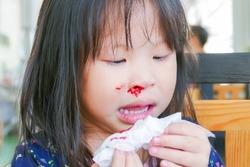 Little asian girl wipe her bleeding nose by tissue paper