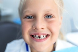 Little blond happy kid girl at dentist office smiling showing diastema overbite teeth missing gap. Child during orthodontist visit and oral cavity check-up. Children tooth care and hygiene