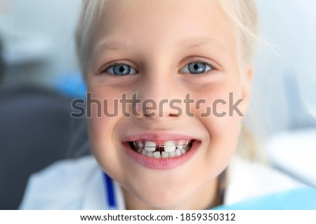 Little blond happy kid girl at dentist office smiling showing diastema overbite teeth missing gap. Child during orthodontist visit and oral cavity check-up. Children tooth care and hygiene Foto stock ©