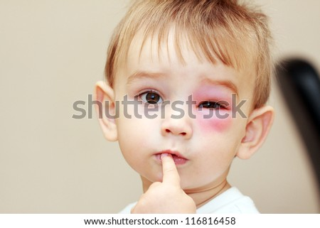 little boy - dangerous stings from wasps near the eye