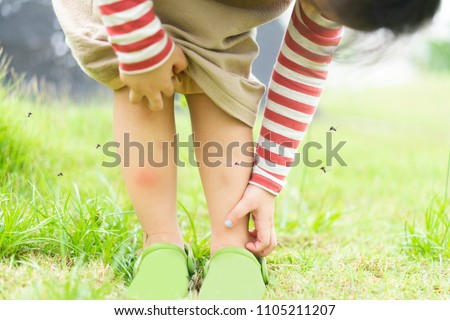 Little girl has allergies with mosquitoes bite and itching her leg.Mosquito blood breeding on kids.Repellent, Dengue virus, Yellow fever, West nile, Malaria, Diseases Spread by Mosquitoes concept.