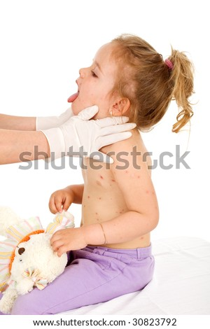 Little girl with small pox consulted by a physician - isolated