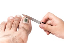 little hand use a nail file to clean toenail isolated