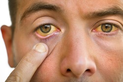 Liver disease. Young man face with yellowish eyes and skin. Sign of problems with liver. Symptoms of high bilirubin, jaundice, hepatosis, hepatitis, cirrhosis, liver failure