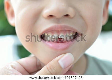 Lost milk tooth boy, Close up view.