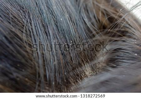 Louse egg on the hair causes itchy head.