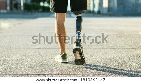 Low angle view at disabled young man with prosthetic leg walking along the street Foto stock ©