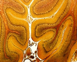 Low magnification micrograph of a cerebellum. Each folium shows the three layers of cerebellar cortex (molecular, Purkinje and granular) surrounding a central axis of white matter. Silver stain
