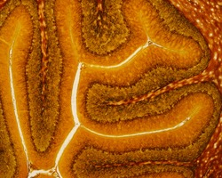 Low magnification micrograph of a silver stained cerebellum. Each folium shows the three layers of cerebellar cortex (molecular, Purkinje and granular) surrounding a central axis of white matter.