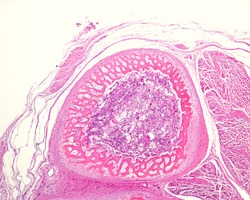 Low magnification micrograph showing a cross-sectioned immature bone. The periosteum surrounds the cortical of immature or primary woven bone tissue. The center material is the bone marrow.