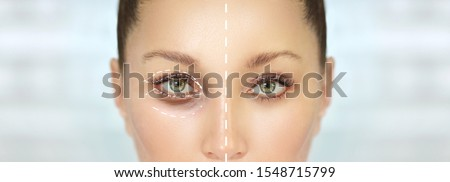 Lower and upper Blepharoplasty.Marking the face.Perforation lines on females face, plastic surgery concept. Stock photo ©