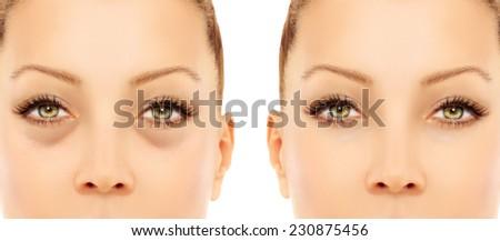 Lower-Eyelid Blepharoplasty.Correcting  the aging process