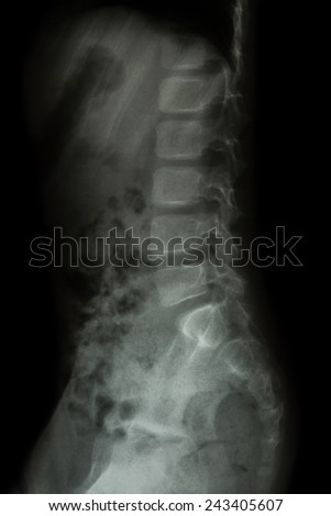 Lumbar spine of child ( X-ray thoracic - lumbar spine ) ( lateral view )
