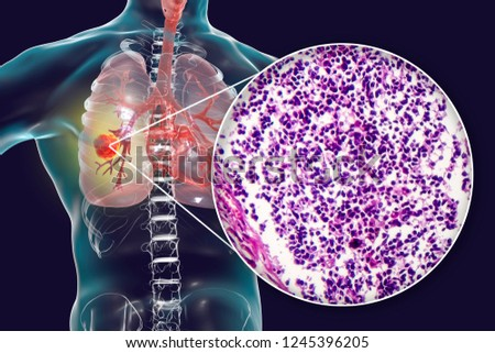 Lung cancer, 3D illustration and photo under microscope. Histopathology light micrograph of small cell lung cancer