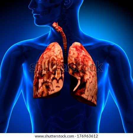 lung cancer unhealthy lungs stock photo 176963612