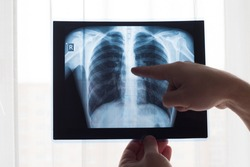 Lung radiography concept. Radiology doctor examining at chest x ray film of patient Lung Cancer or Pneumonia. Virus and bacteria infected the Human lungs. Patient with Lung Cancer or Pneumonia