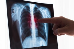 Lung radiography concept. Radiology doctor examining at chest x ray film of patient Lung Cancer or Pneumonia. Virus and bacteria infected the Human lungs. Patient with Lung Cancer or Pneumonia.