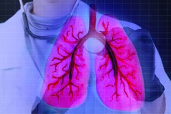 Lungs on doctor virtual screen. Lungs human in anatomy. Doctor performs an analysis of human lungs. Human organism. Affected organism is displayed on screen. Signs of the disease.Pneumomania