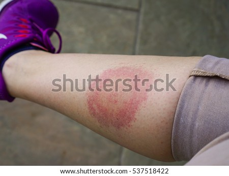 Lyme disease, Borreliosis or Borrelia, typical lyme rash, spot. A person, leg bitten by a deer tick. Selective focus.
