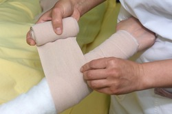 Lymphedema management: Wrapping Lymphedema Hand and Arm using multilayer bandages to control Lymphedema. Part of complete decongestive therapy (cdt) and manual lymphatic drainage (MLD)