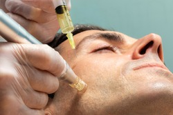 Macro close up of therapist injecting enzymes on cheek with derma pen of middle aged man.