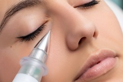 Macro close up of woman having noninvasive cosmetic facial with plasma pen. Cone shaped device doing skin tightening under eye.