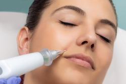 Macro close up of young woman having cheek wrinkles removed in clinic. Cone shaped plasma pen reducing fine lines around bottom of cheek.