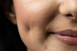 Macro closeup of Caucasian woman smiling having dimples. Beauty concept.