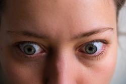 Macro closeup of young woman face with Grave's disease hyperthyroidism symptoms of ophthalmopathy bulging eyes proptosis edema