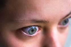 Macro closeup profile portrait of young woman face with Grave's disease hyperthyroidism symptoms of ophthalmopathy bulging eyes and proptosis edema