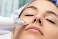 Macro detail of cone shaped plasma pen reducing wrinkles around cheek on young woman. Noninvasive cosmetic treatment.