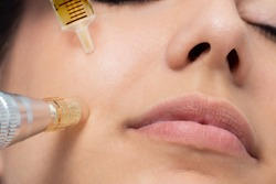 Macro detail of micro needle cosmetic treatment on female cheek. Derma pen and syringe with plant extracts next to face.