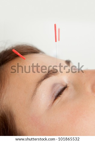 Macro detail of three needles in face of patient - stock photo