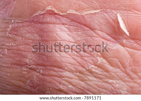 macro of eczema on male grip with skin peeling