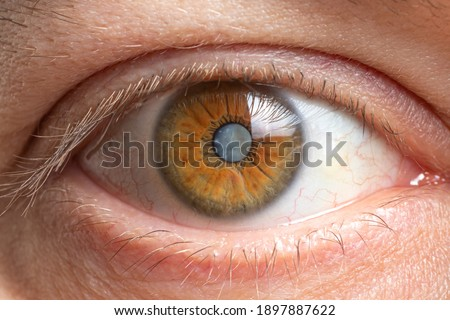 Macro photos of the human eye - cataract clouding of the lens, deterioration of vision. Cataract treatment, surgery and ophthalmology Zdjęcia stock ©