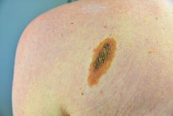 Macro shot of benign skin lesion. Proliferation of pigment derma cells, melanocytic pigmented naevus, naevocytic nevus. Mole or melanoma black color on man of skin lesion case.