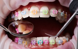 Macro snapshot of open mouth, teeth, ceramic braces with colorful rubber bands on them, latex cheek retractor on lips. Dentist checking teeth with mirror and dental explorer. Concept of orthodontics