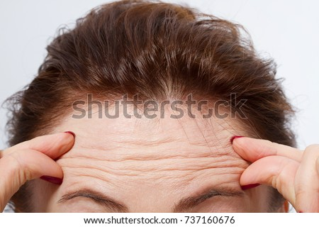 Macro Woman face with wrinkles on the forehead. Collagen and face injections concept. Menopause. Cropped image. Copy space and mock up. Stock photo ©