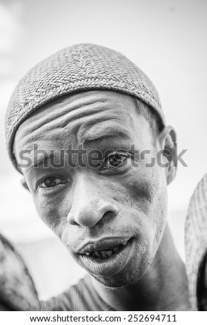 MADAGASCAR - JUNE 30, 2011: Portrait of an unidentified surprised man in Madagascar, June 30, 2011. People of Madagascar suffer of poverty due to the unstable situation.