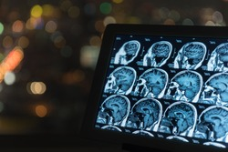 magnetic resonance image, mri scan of the brain on tablet screen computer.