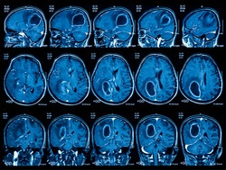 Magnetic resonance imaging (MRI) of the brain, brain tumor, three views (sagittal, coronal and transverse)