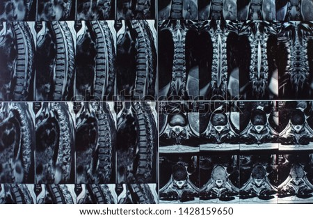Magnetic resonance imaging of the human spine. Hernia on the spine.