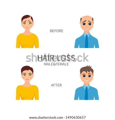 Male and female pattern baldness. Androgenetic alopecia treatment. Hair regrowth and replacement surgery. Receding hairline, thinning crown, bald patch medical solution.