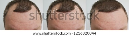 male baldness before and after treatment