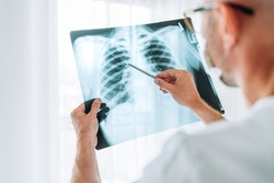 Male doctor examining the patient chest x-ray film lungs scan at radiology department in hospital.Covid-19 scan body xray test detection for covid worldwide virus epidemic spread concept.