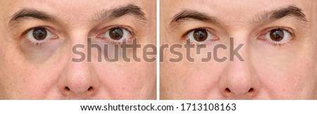 Male eye bags before and after cosmetic treatment or plastic procedure, blepharoplasty. Close-up. Stock photo ©